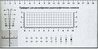 Трафарет для расшифровки радиографических снимков (мерный шаблон)